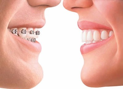 牙齿矫正(支付宝)微信小程序